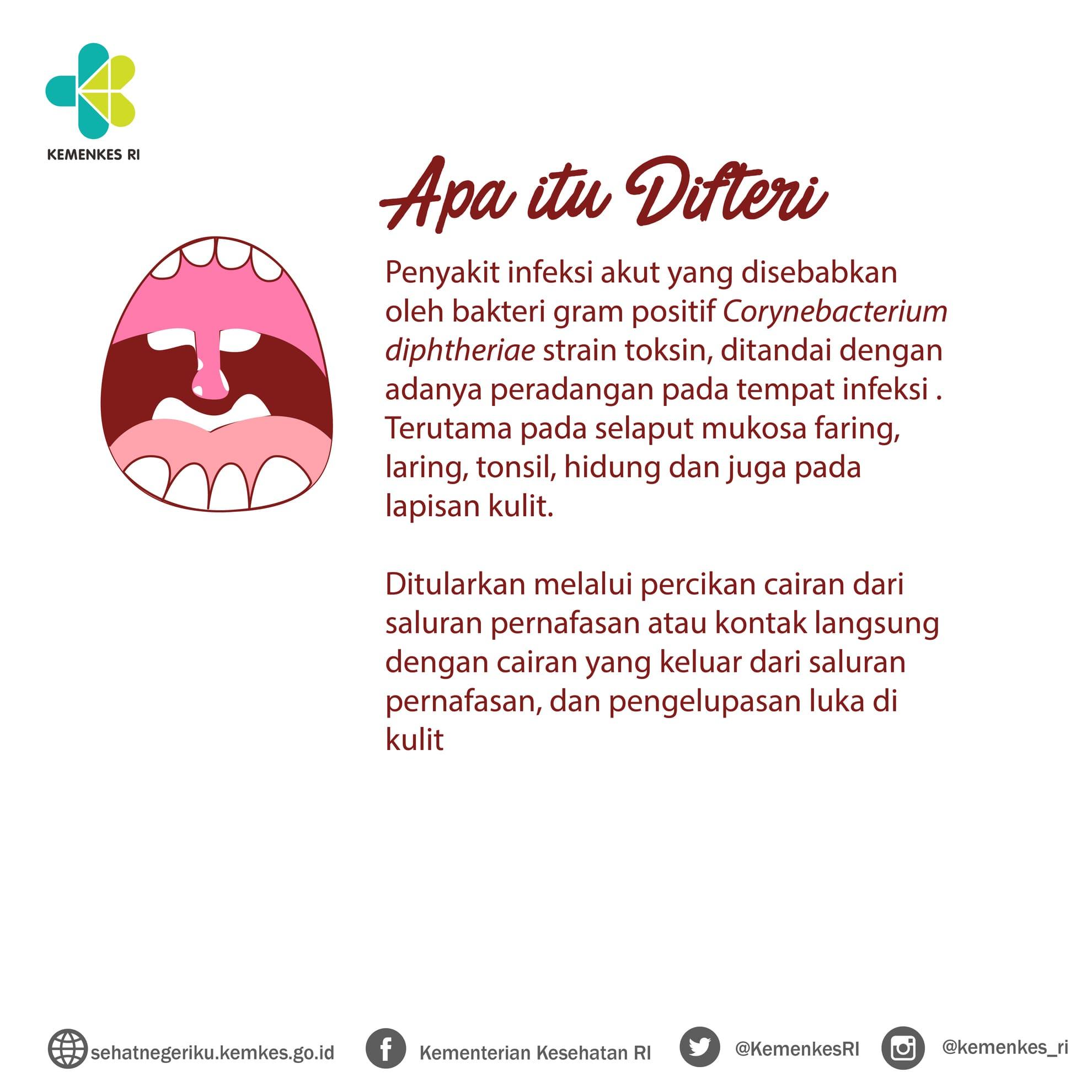 difteri-01